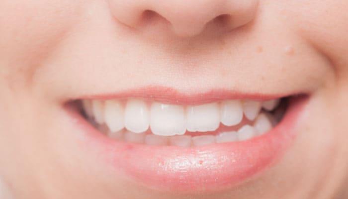 ストレスから歯を守る